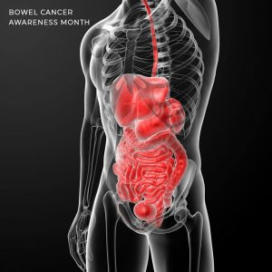 June is the Bowel Cancer Awareness month, for early cancer detection, Doctors in Adelaide