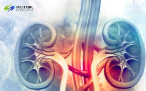 Kidney Stones are effectively treated and managed by a Urologist or a Urological Surgeon, Solitaire Medical Group